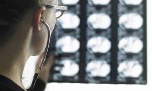 Treatment of Traumatic Brain Injury