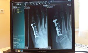 Medical Image Analysis Software
